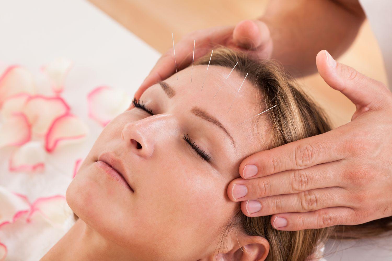 Kozmetična akupunktura